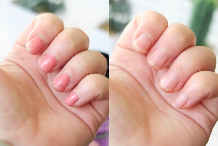 trekpleister nagellak remover